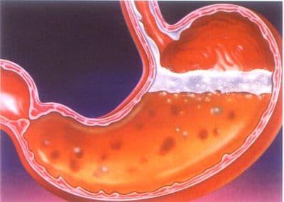 rekomendatsii-pri-jazvennoj-bolezni