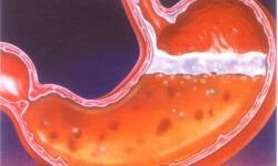 Рекомендации при язвенной болезни